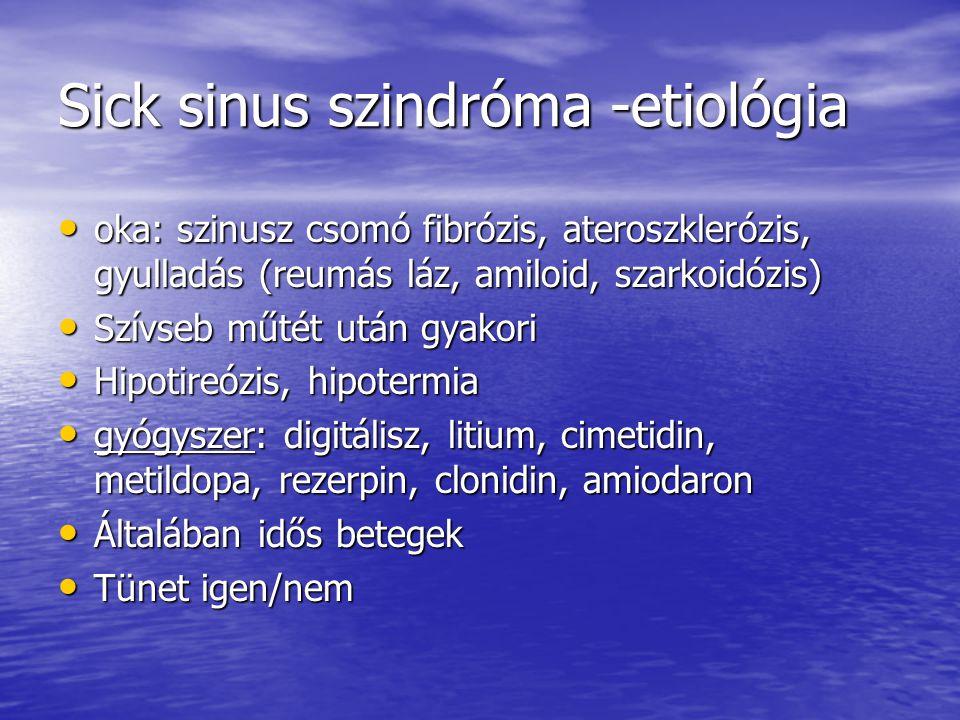 Sick sinus szindróma -etiológia oka: szinusz csomó fibrózis, ateroszklerózis, gyulladás (reumás láz, amiloid, szarkoidózis) oka: szinusz csomó fibrózi
