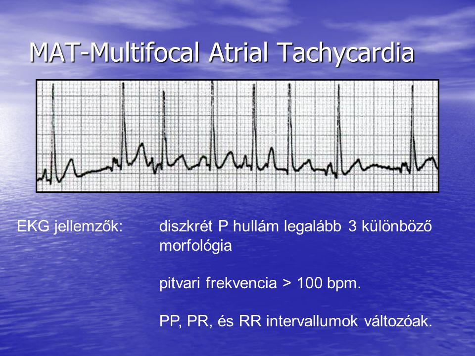 MAT-Multifocal Atrial Tachycardia EKG jellemzők: diszkrét P hullám legalább 3 különböző morfológia pitvari frekvencia > 100 bpm. PP, PR, és RR interva