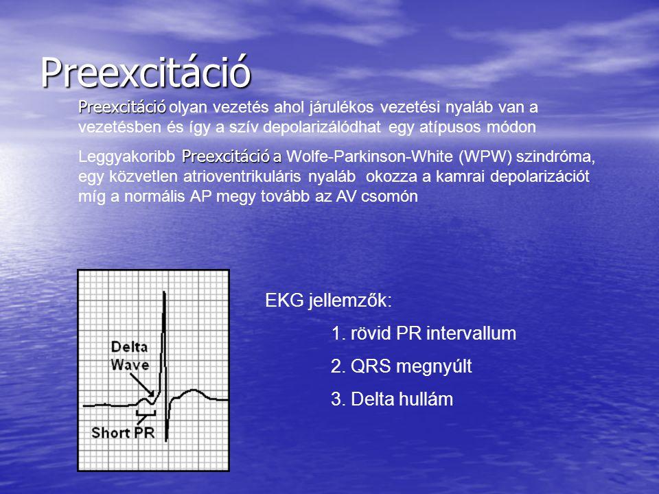 Preexcitáció EKG jellemzők: 1. rövid PR intervallum 2. QRS megnyúlt 3. Delta hullám Preexcitáció Preexcitáció olyan vezetés ahol járulékos vezetési ny
