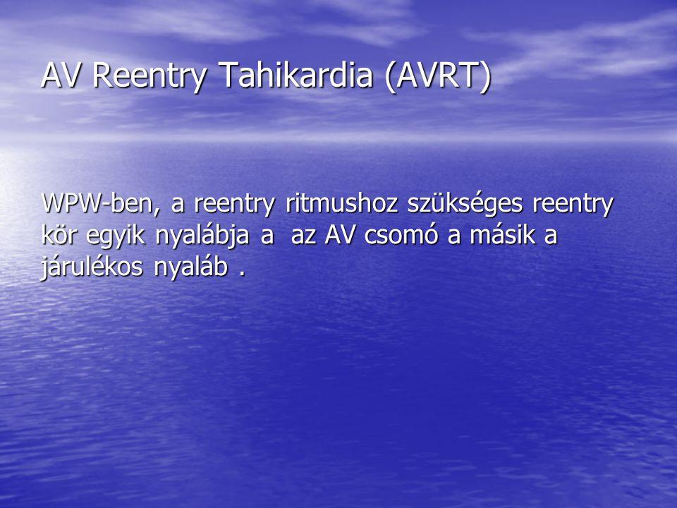AV Reentry Tahikardia (AVRT) WPW-ben, a reentry ritmushoz szükséges reentry kör egyik nyalábja a az AV csomó a másik a járulékos nyaláb.