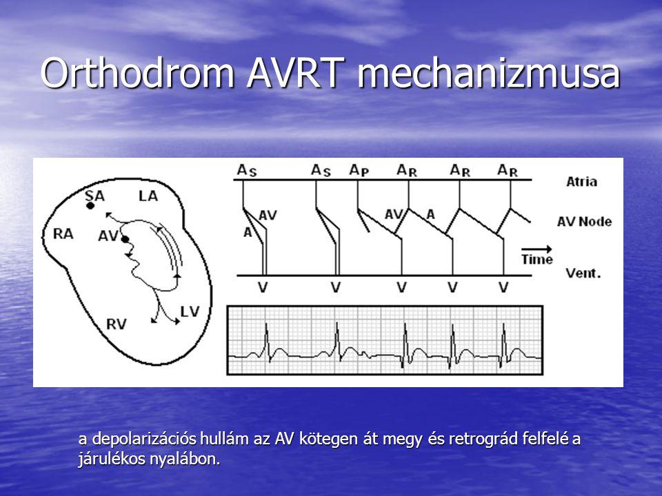Orthodrom AVRT mechanizmusa a depolarizációs hullám az AV kötegen át megy és retrográd felfelé a járulékos nyalábon.