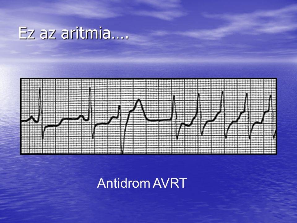 Ez az aritmia…. Antidrom AVRT