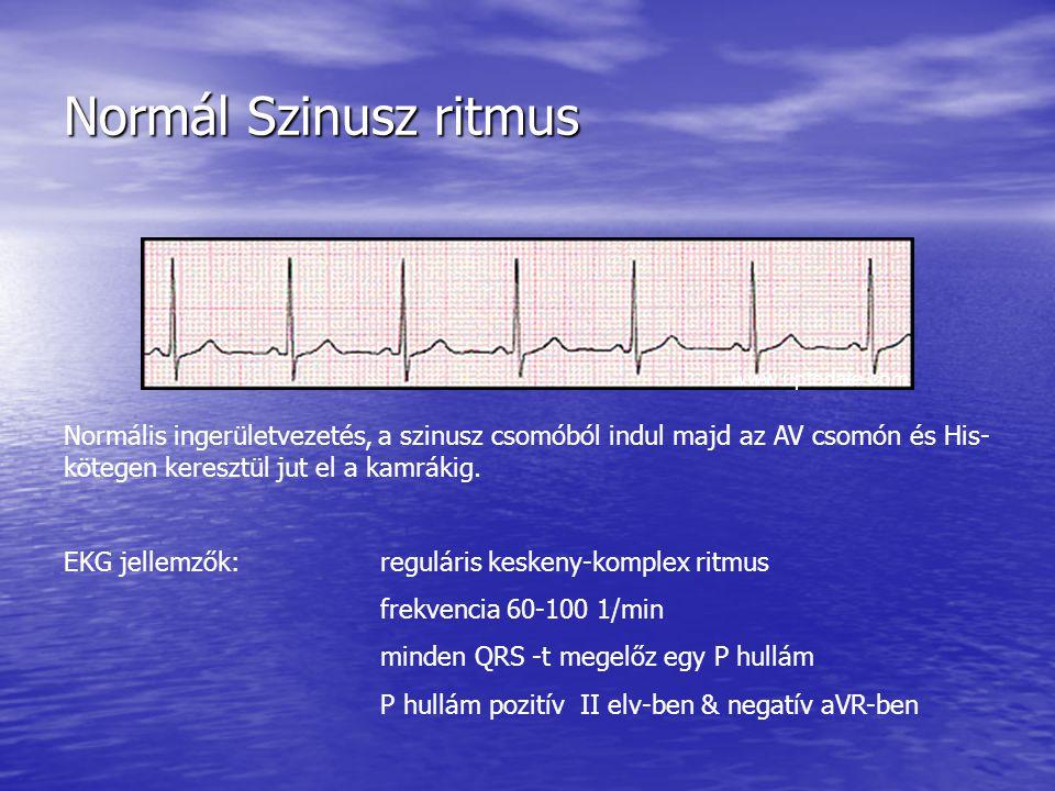 Normál Szinusz ritmus Normális ingerületvezetés, a szinusz csomóból indul majd az AV csomón és His- kötegen keresztül jut el a kamrákig. EKG jellemzők