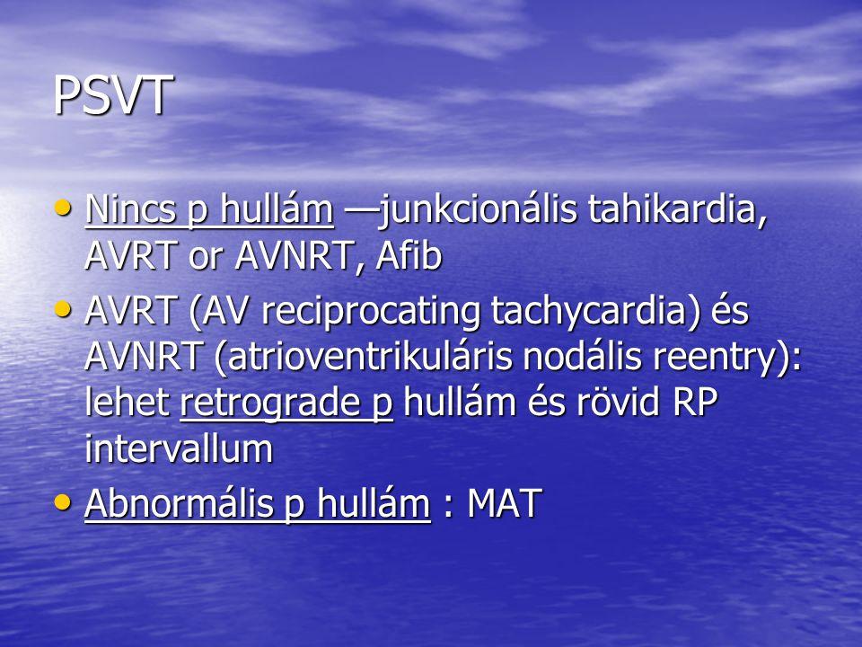 PSVT Nincs p hullám —junkcionális tahikardia, AVRT or AVNRT, Afib Nincs p hullám —junkcionális tahikardia, AVRT or AVNRT, Afib AVRT (AV reciprocating