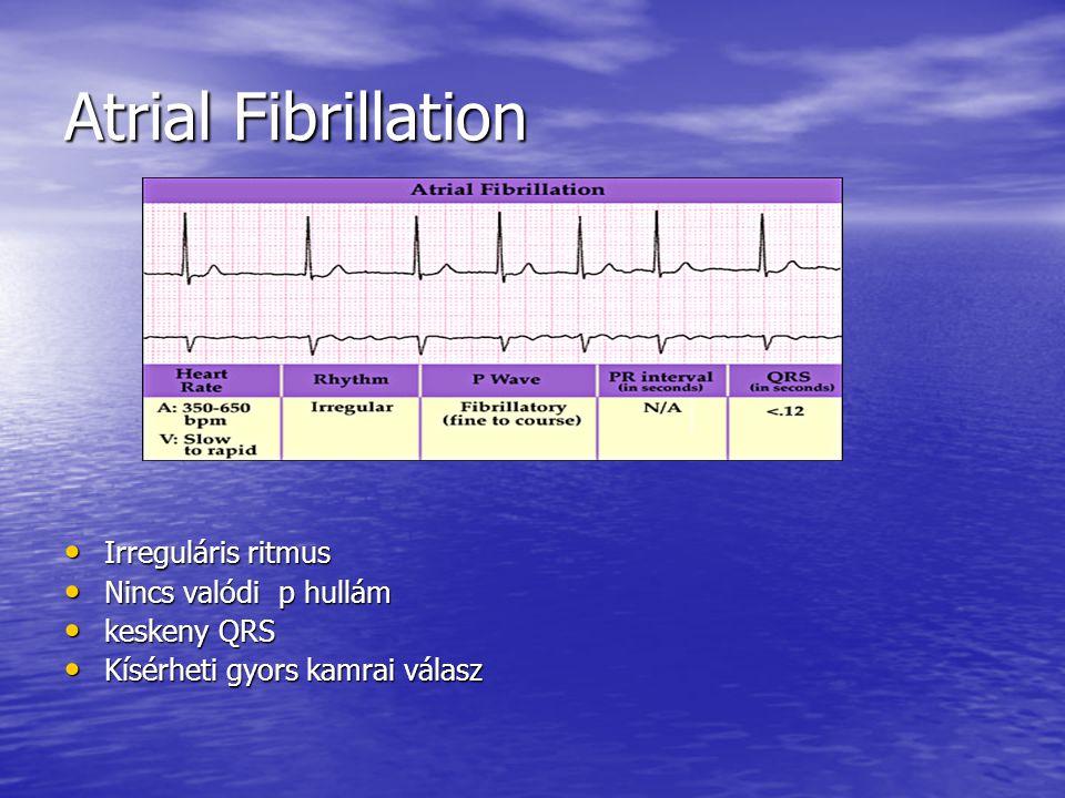 Atrial Fibrillation Irreguláris ritmus Irreguláris ritmus Nincs valódi p hullám Nincs valódi p hullám keskeny QRS keskeny QRS Kísérheti gyors kamrai v