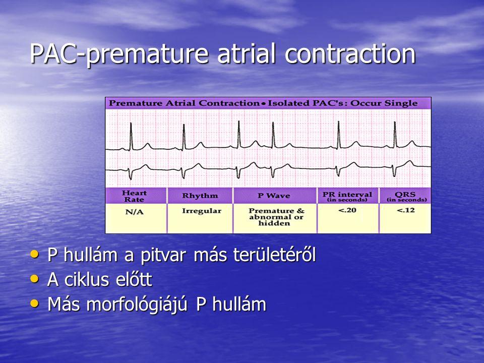PAC-premature atrial contraction P hullám a pitvar más területéről P hullám a pitvar más területéről A ciklus előtt A ciklus előtt Más morfológiájú P