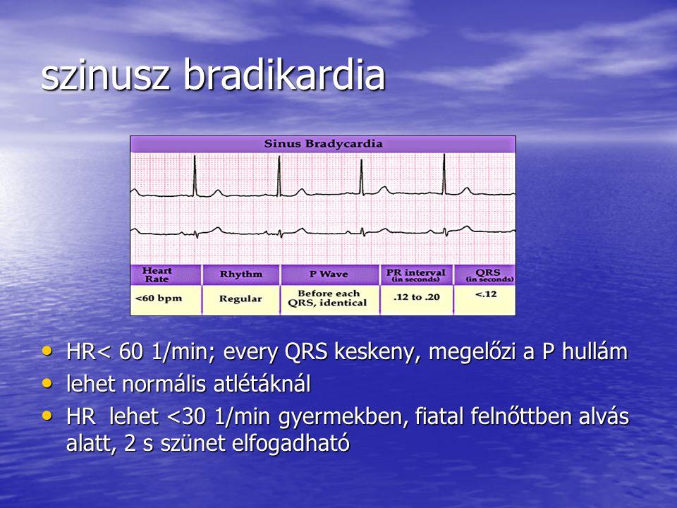 szinusz bradikardia HR< 60 1/min; every QRS keskeny, megelőzi a P hullám HR< 60 1/min; every QRS keskeny, megelőzi a P hullám lehet normális atlétákná