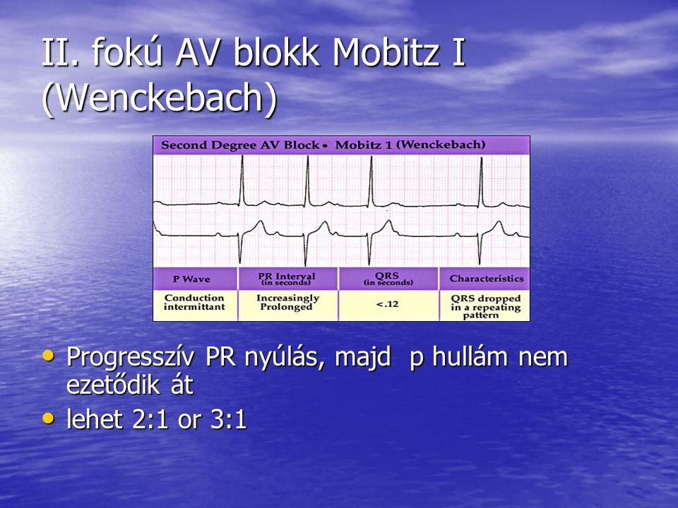 II. fokú AV blokk Mobitz I (Wenckebach) Progresszív PR nyúlás, majd p hullám nem ezetődik át Progresszív PR nyúlás, majd p hullám nem ezetődik át lehe