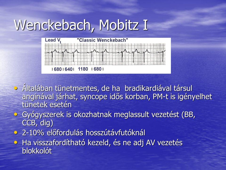 Wenckebach, Mobitz I Általában tünetmentes, de ha bradikardiával társul anginával járhat, syncope idős korban, PM-t is igényelhet tünetek esetén Által