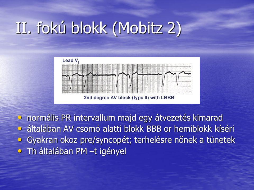 II. fokú blokk (Mobitz 2) normális PR intervallum majd egy átvezetés kimarad normális PR intervallum majd egy átvezetés kimarad általában AV csomó ala