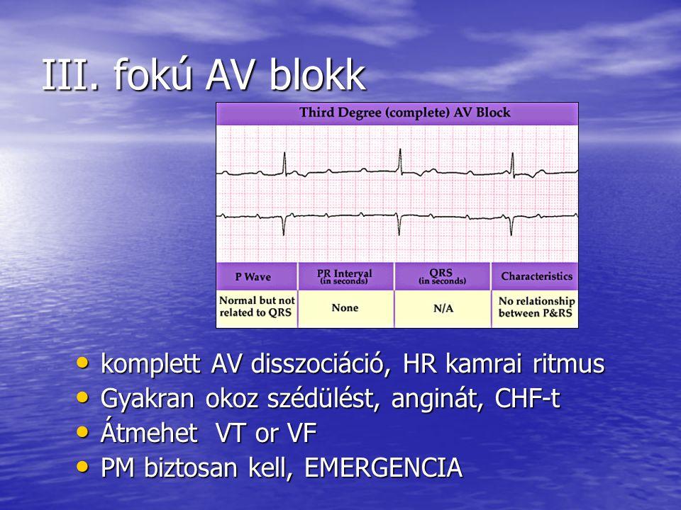 III. fokú AV blokk komplett AV disszociáció, HR kamrai ritmus komplett AV disszociáció, HR kamrai ritmus Gyakran okoz szédülést, anginát, CHF-t Gyakra