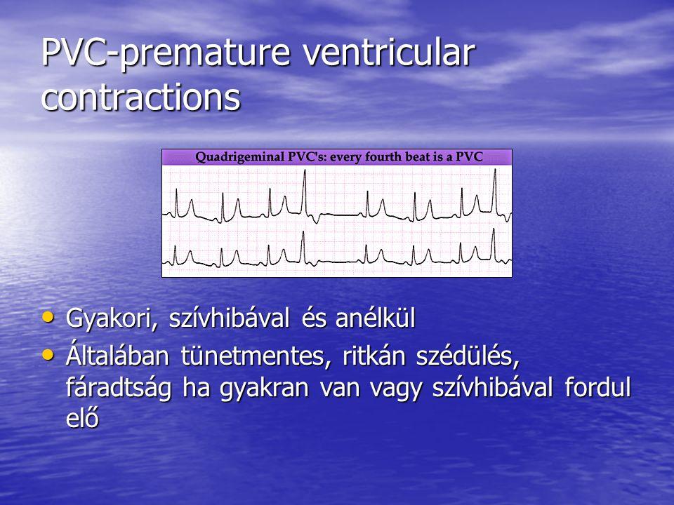 PVC-premature ventricular contractions Gyakori, szívhibával és anélkül Gyakori, szívhibával és anélkül Általában tünetmentes, ritkán szédülés, fáradts