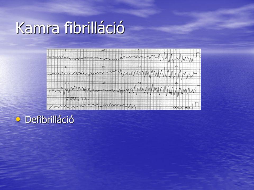 Kamra fibrilláció Defibrilláció Defibrilláció