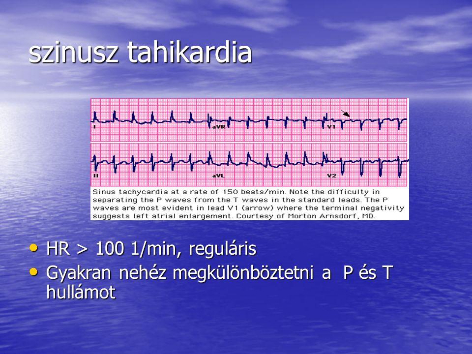 szinusz tahikardia HR > 100 1/min, reguláris HR > 100 1/min, reguláris Gyakran nehéz megkülönböztetni a P és T hullámot Gyakran nehéz megkülönböztetni