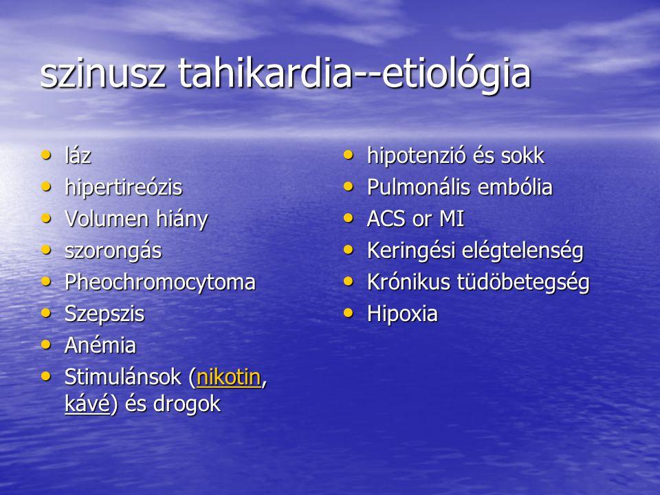 szinusz tahikardia--etiológia láz láz hipertireózis hipertireózis Volumen hiány Volumen hiány szorongás szorongás Pheochromocytoma Pheochromocytoma Sz