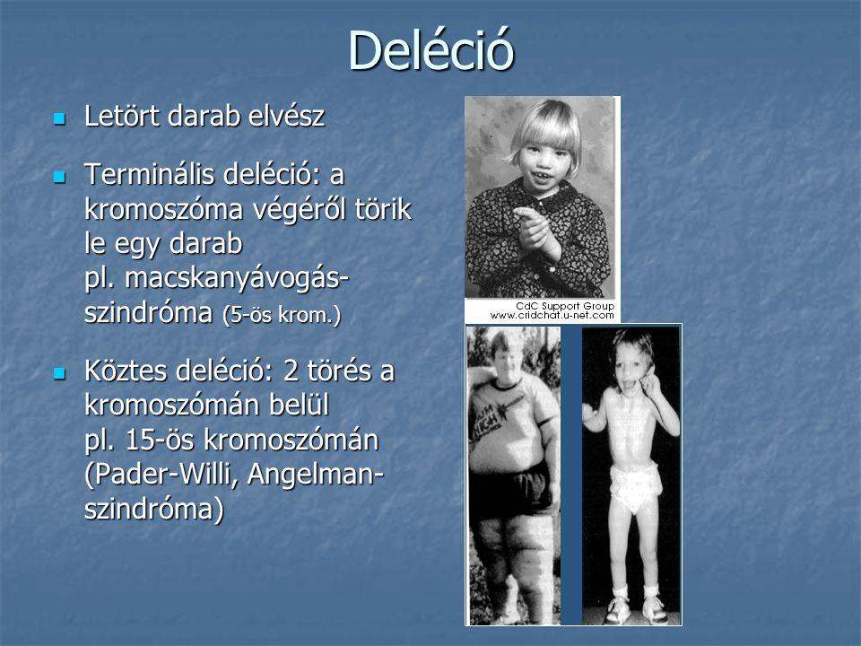 Deléció Letört darab elvész Letört darab elvész Terminális deléció: a kromoszóma végéről törik le egy darab pl.