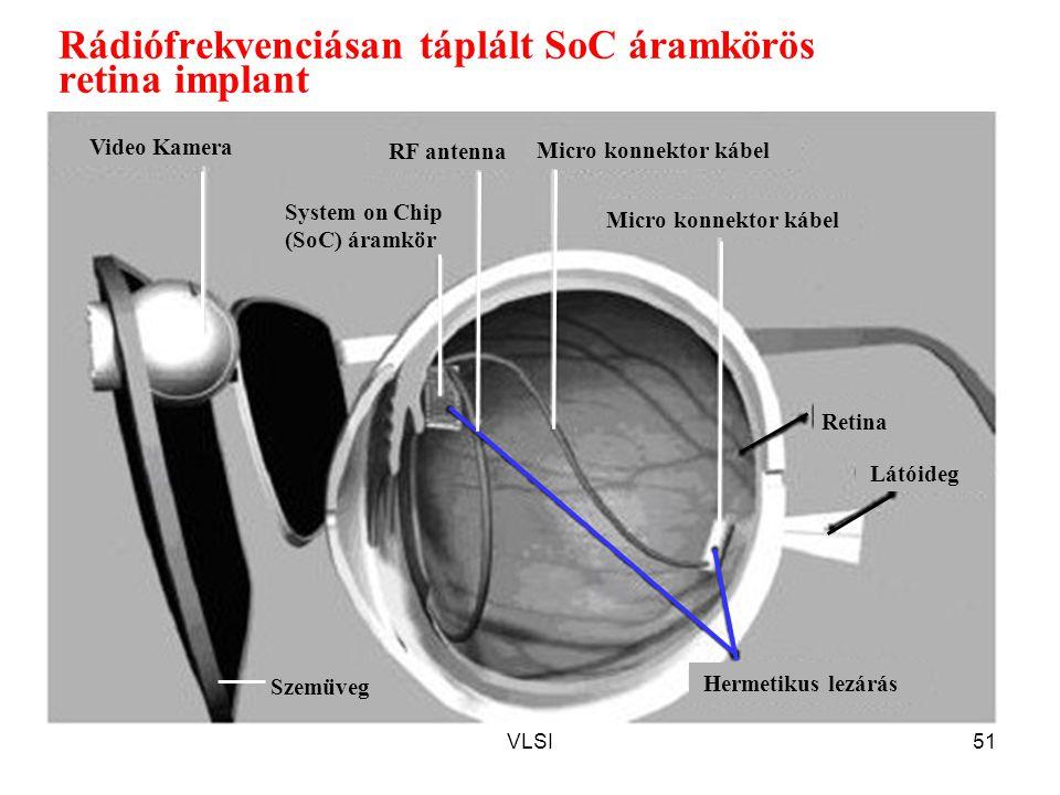 VLSI51 Rádiófrekvenciásan táplált SoC áramkörös retina implant Micro konnektor kábel Video Kamera Retina Látóideg Hermetikus lezárás RF antenna System on Chip (SoC) áramkör Szemüveg