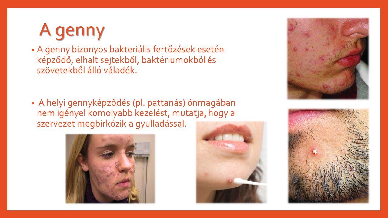 A genny A genny bizonyos bakteriális fertőzések esetén képződő, elhalt sejtekből, baktériumokból és szövetekből álló váladék. A helyi gennyképződés (p