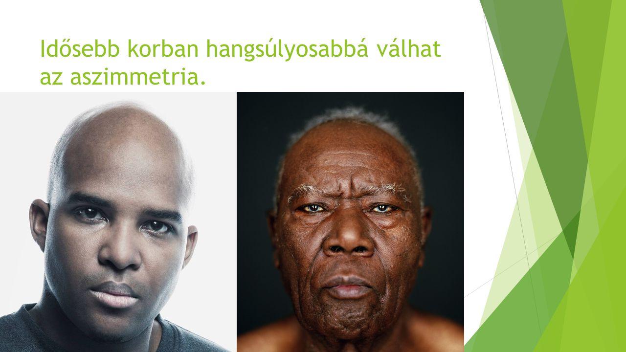 Idősebb korban hangsúlyosabbá válhat az aszimmetria.