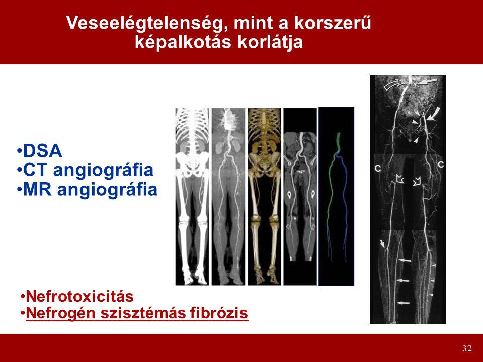32 Veseelégtelenség, mint a korszerű képalkotás korlátja DSA CT angiográfia MR angiográfia Nefrotoxicitás Nefrogén szisztémás fibrózis