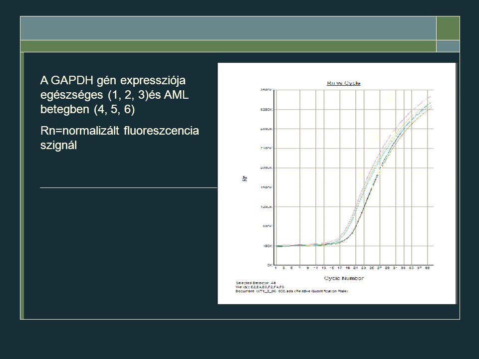 A GAPDH gén expressziója egészséges (1, 2, 3)és AML betegben (4, 5, 6) Rn=normalizált fluoreszcencia szignál 1 2 3 4 5 6