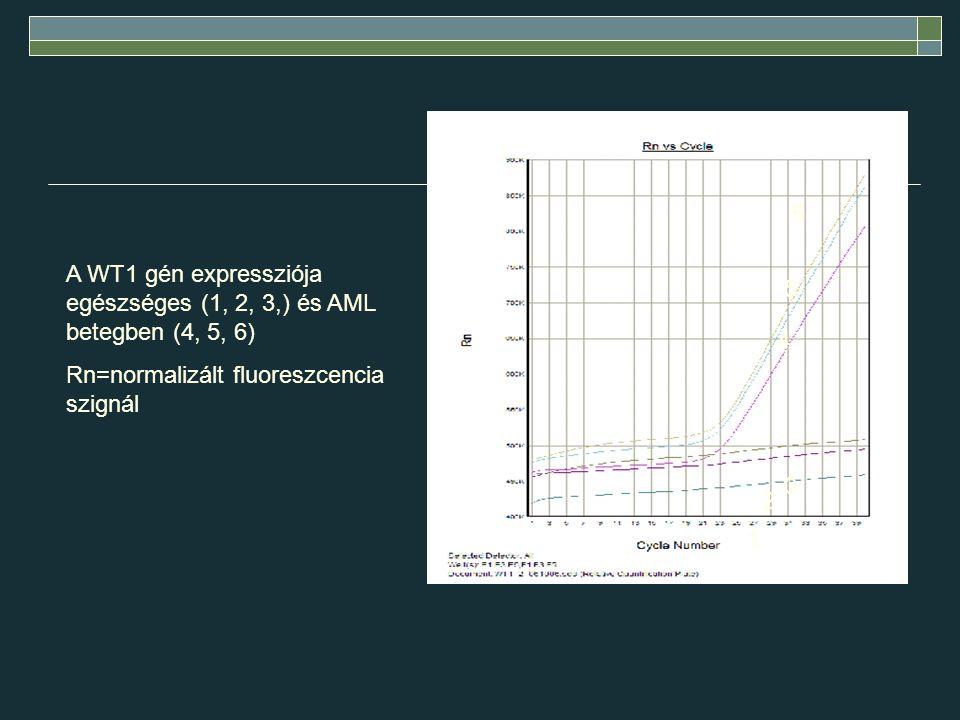 A WT1 gén expressziója egészséges (1, 2, 3,) és AML betegben (4, 5, 6) Rn=normalizált fluoreszcencia szignál 1 2 3 4 5 6