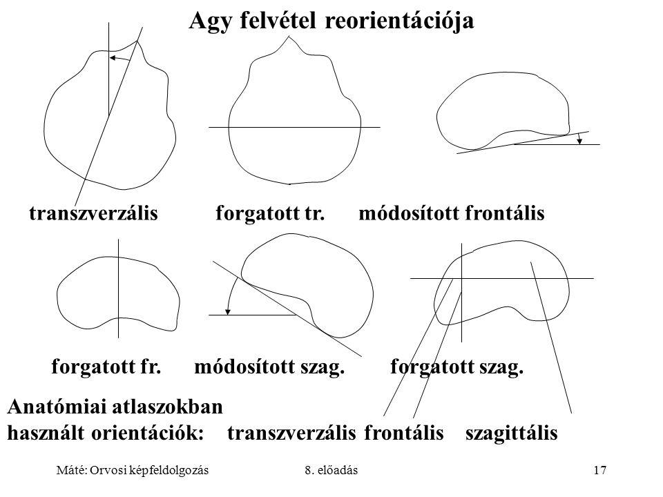 Máté: Orvosi képfeldolgozás8. előadás17 Agy felvétel reorientációja transzverzális forgatott tr.