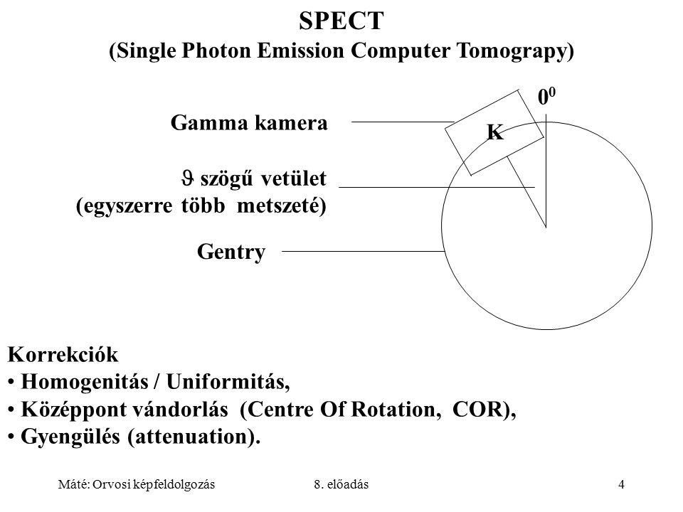 Máté: Orvosi képfeldolgozás8. előadás5 SPECT-ként is alkalmazható gamma kamerák