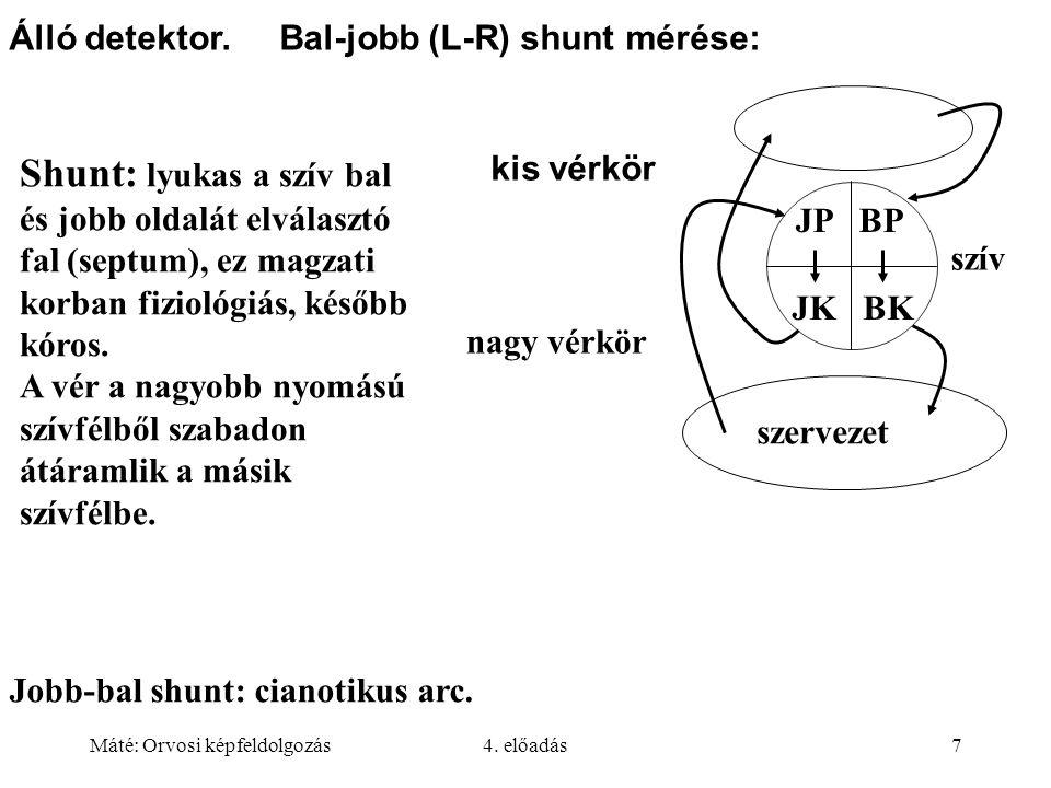 Máté: Orvosi képfeldolgozás4. előadás7 Álló detektor. Bal-jobb (L-R) shunt mérése: Shunt: lyukas a szív bal és jobb oldalát elválasztó fal (septum), e