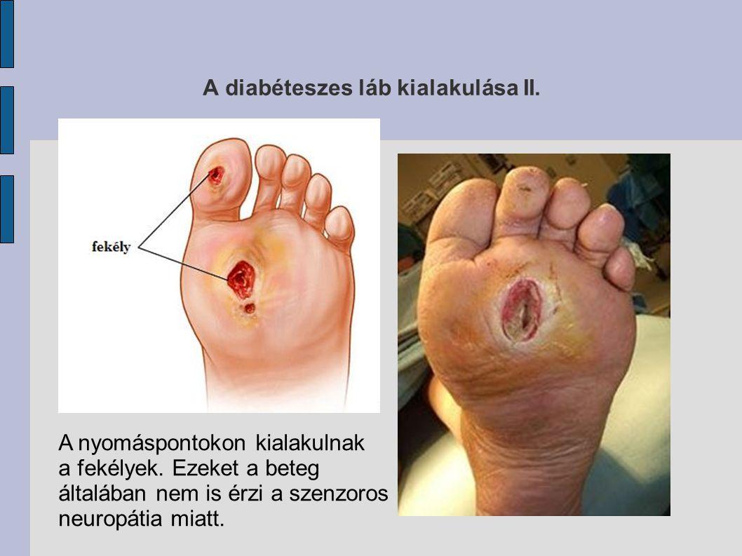 A diabéteszes láb kialakulása II. A nyomáspontokon kialakulnak a fekélyek. Ezeket a beteg általában nem is érzi a szenzoros neuropátia miatt.