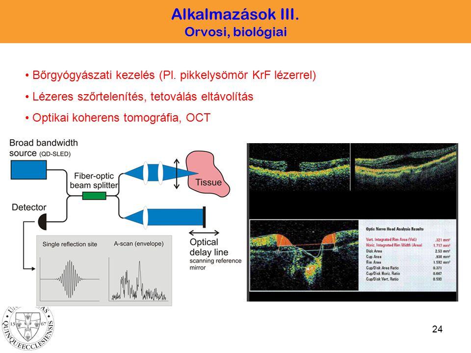 24 Alkalmazások III. Orvosi, biológiai Bőrgyógyászati kezelés (Pl. pikkelysömör KrF lézerrel) Lézeres szőrtelenítés, tetoválás eltávolítás Optikai koh