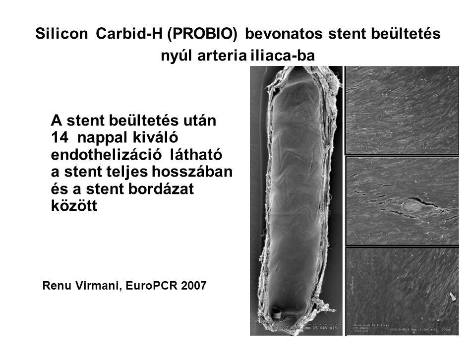 Silicon Carbid-H (PROBIO) bevonatos stent beültetés nyúl arteria iliaca-ba A stent beültetés után 14 nappal kiváló endothelizáció látható a stent teljes hosszában és a stent bordázat között Renu Virmani, EuroPCR 2007
