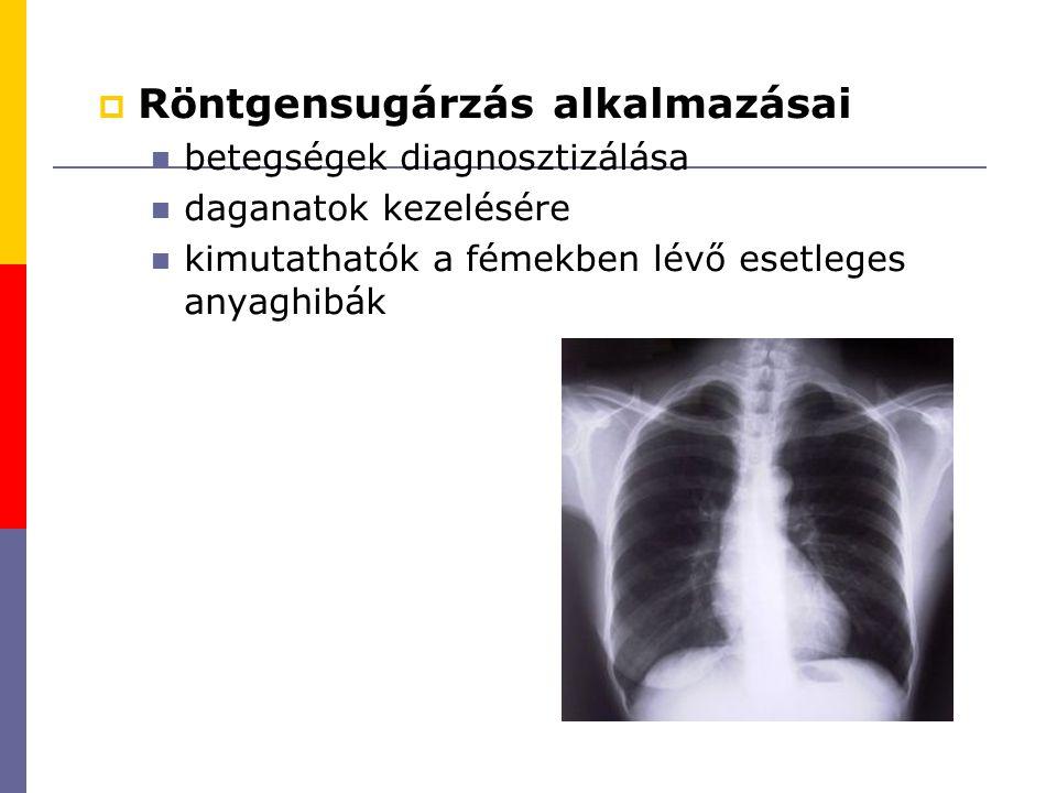  Röntgensugárzás alkalmazásai betegségek diagnosztizálása daganatok kezelésére kimutathatók a fémekben lévő esetleges anyaghibák
