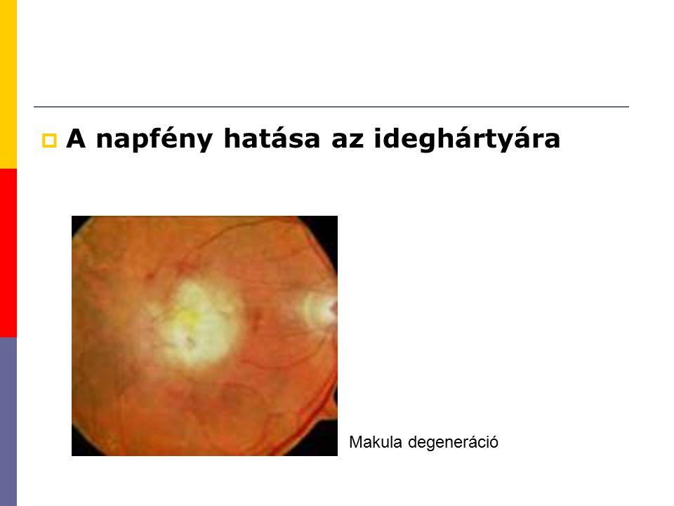  A napfény hatása az ideghártyára Makula degeneráció