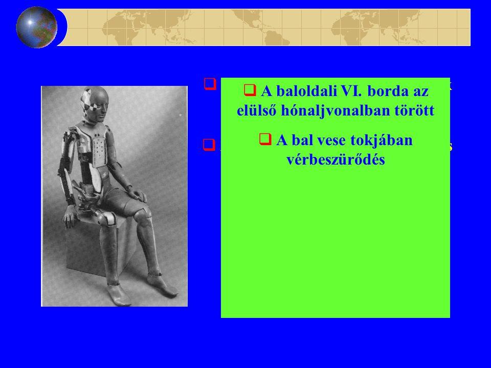  Arcán bal oldalt hámhorzsolások  A nyak jobb oldalán hámhorzsolás  A jobb vállcsúcstól a mellkasra is ráterjedő hámhorzsolás  A bal oldali fülkagyló roncsolódott  Koponyaalapi törés  Kemény és lágyburok alatti vérzés  Agyállományban pontszerű bevérzések  A baloldali VI.
