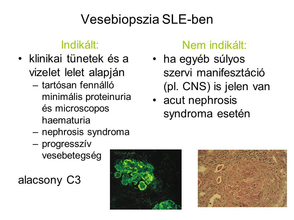 Vesebiopszia SLE-ben Indikált: klinikai tünetek és a vizelet lelet alapján –tartósan fennálló minimális proteinuria és microscopos haematuria –nephros