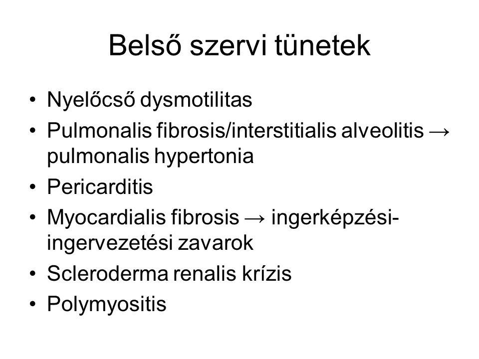 Belső szervi tünetek Nyelőcső dysmotilitas Pulmonalis fibrosis/interstitialis alveolitis → pulmonalis hypertonia Pericarditis Myocardialis fibrosis →
