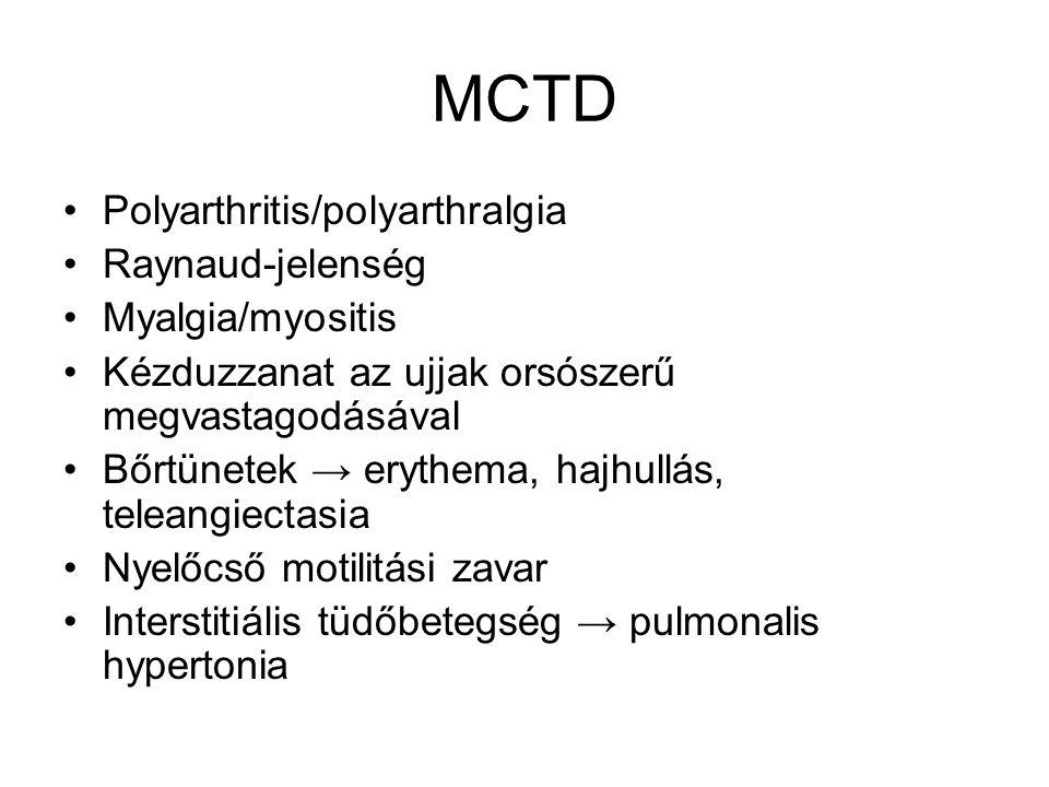MCTD Polyarthritis/polyarthralgia Raynaud-jelenség Myalgia/myositis Kézduzzanat az ujjak orsószerű megvastagodásával Bőrtünetek → erythema, hajhullás,