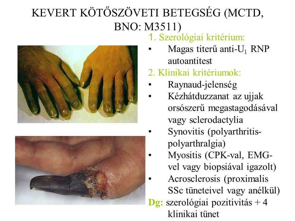 KEVERT KÖTŐSZÖVETI BETEGSÉG (MCTD, BNO: M3511) 1. Szerológiai kritérium: Magas titerű anti-U 1 RNP autoantitest 2. Klinikai kritériumok: Raynaud-jelen