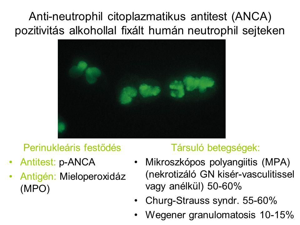 Anti-neutrophil citoplazmatikus antitest (ANCA) pozitivitás alkohollal fixált humán neutrophil sejteken Perinukleáris festődés Antitest: p-ANCA Antigé