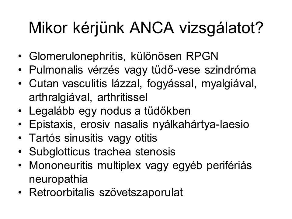 Mikor kérjünk ANCA vizsgálatot? Glomerulonephritis, különösen RPGN Pulmonalis vérzés vagy tüdő-vese szindróma Cutan vasculitis lázzal, fogyással, myal