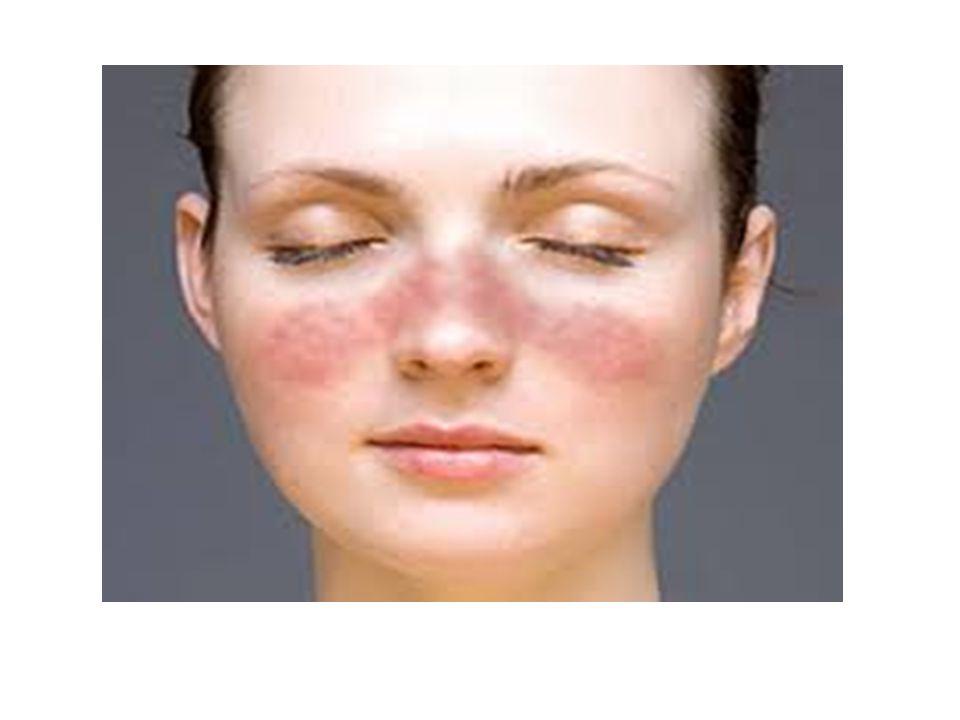 Klinikai tünetek 1 Általános tünetek Bőrtünetek → pillangó-erythema, fényérzékenység, heges alopecia, panniculitis, nyálkahártya fekély,vasculitises purpura, Raynaud syndroma, livedo reticularis Mozgásszervi tünetek → arhritis PIP, MCP, MTP, nem erozív, myositis Lupus nephritis→ nephrosis syndroma, veseelégtelenség