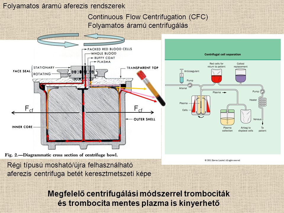 Például: B1 sejtek elválasztása (CD19/CD5) NKT sejtek elválasztása (CD3/CD56) NK sejtek NKT sejtek limfociták Mágneses szeparálással hogyan lehetne ezt megcsinálni?