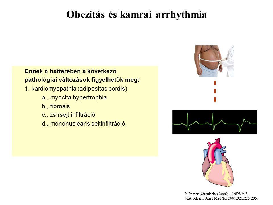 Obezitás és kamrai arrhythmia Ennek a hátterében a következő pathológiai változások figyelhetők meg: 1.