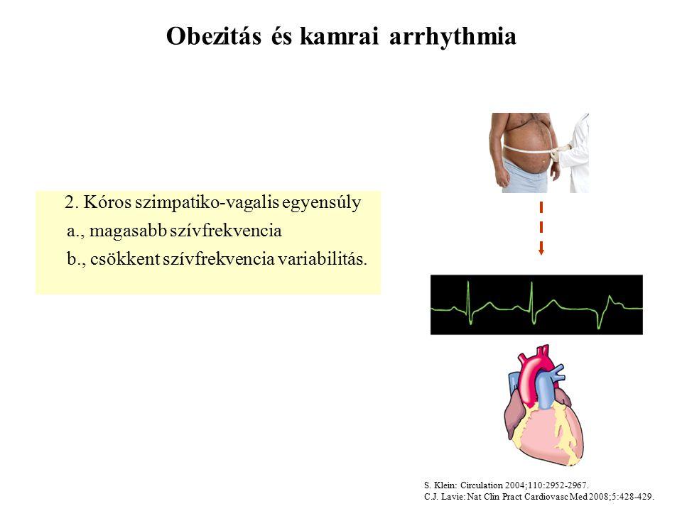 Obezitás és kamrai arrhythmia 2.