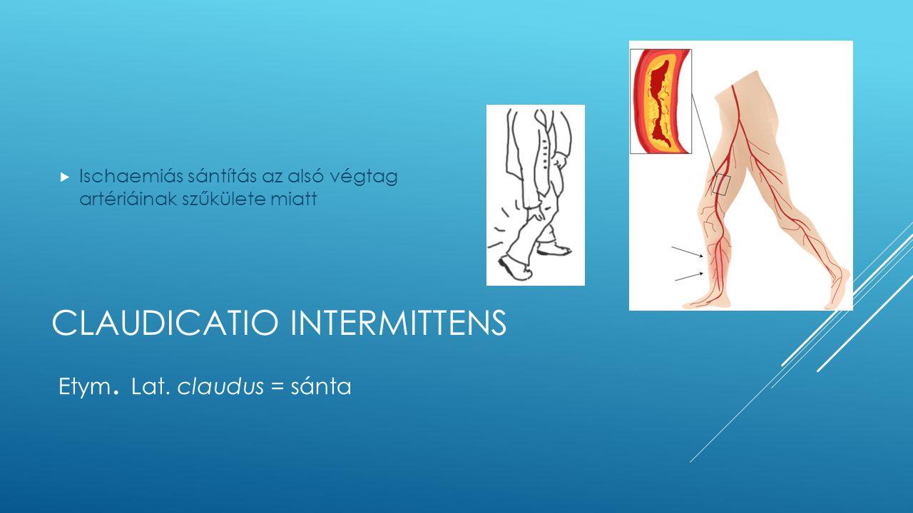 CLAUDICATIO INTERMITTENS  Ischaemiás sántítás az alsó végtag artériáinak szűkülete miatt Etym. Lat. claudus = sánta