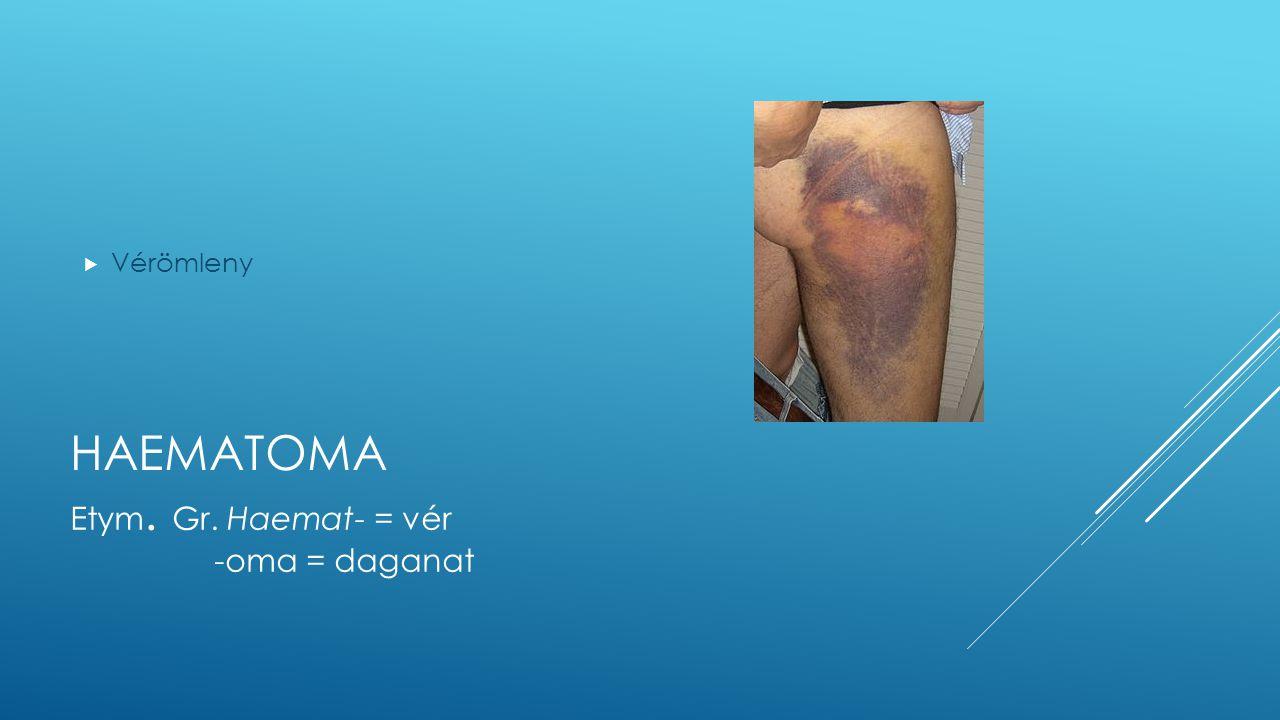 HAEMATOMA  Vérömleny Etym. Gr. Haemat- = vér -oma = daganat