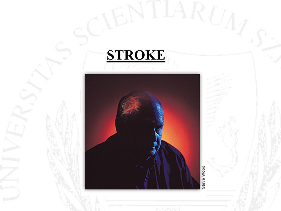 Stroke - definíció Az agyműködés vérellátási zavara által okozott globális vagy fokális neurológiai diszfunkcióval járó, gyorsan kialakuló tünetegyüttes, mely több, mint 24 órán keresztül fennáll és amelynek bizonyíthatóan nincs más oka, mint az agy érrendszerében kialakult változás.