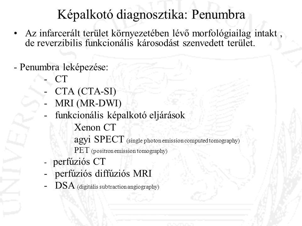 Képalkotó diagnosztika: Penumbra Az infarcerált terület környezetében lévő morfológiailag intakt, de reverzibilis funkcionális károsodást szenvedett t