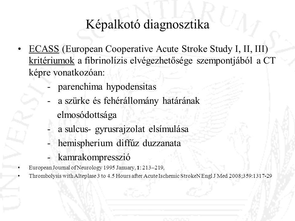 Az akut iszkémiás stroke terápiája Trombolízis feltételei II.: Nem volt gasztrointesztinális vagy húgyúti vérzés az előző 21 napban -Nem volt nagyobb műtét, sérülés az előző 14 napban -Nem volt artériás punkció nem komprimálható helyen az előző 7 napban -Nem volt a betegnek agyvérzése -A vizsgálat során nincs aktív vérzésre, traumára utaló jel -A beteg nem szed orális antikoagulánst, vagy ha igen: INR<1,5, ha kapott heparint az APTI normál tartományban legyen -Thrombocyta szám ≥ 100 000/mm 3